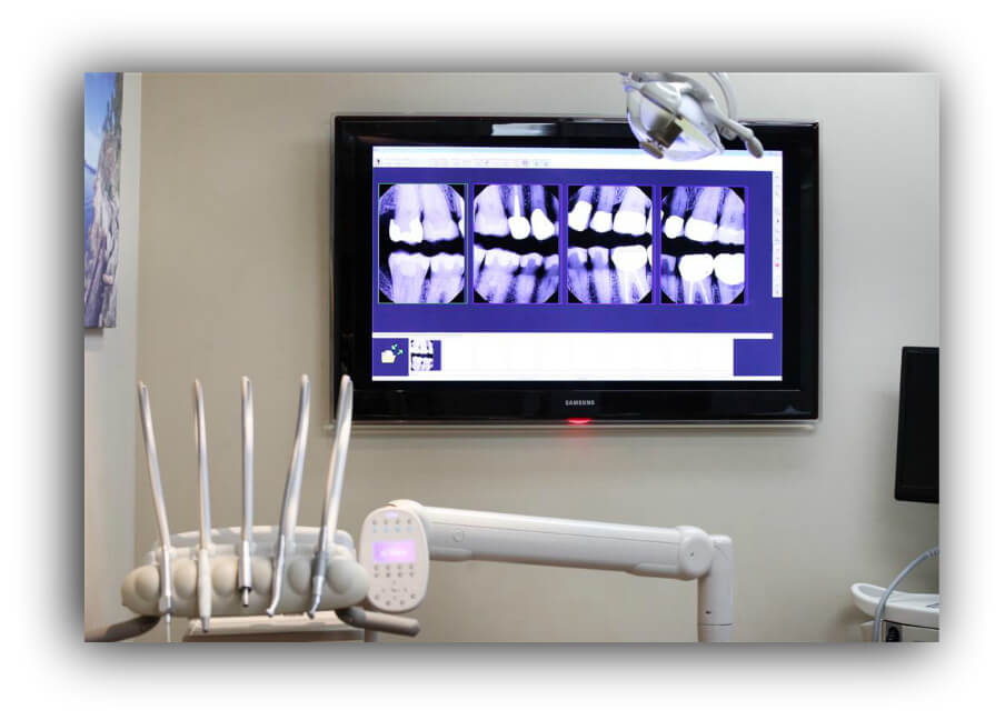 Dundarave Dental Clinic Xrays
