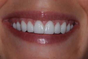 Gum Reshaping