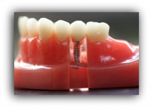 implant-dentistry