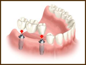 implant_bridge