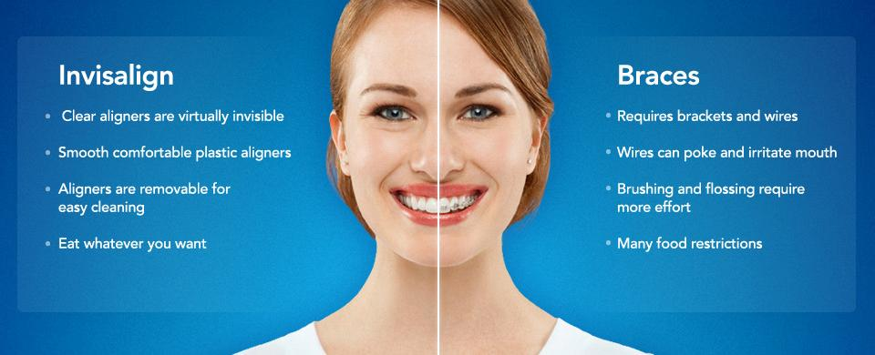 West Vancouver Invisalign Specialists