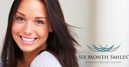 Six Month Smiles – Patient Testimonials