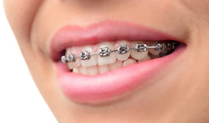 West Vancouver Orthodontics